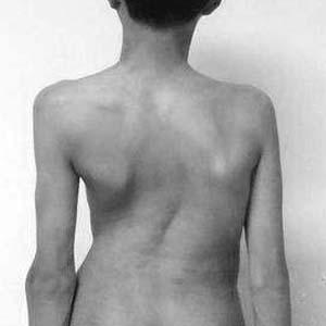 强直性脊柱炎晚期图片