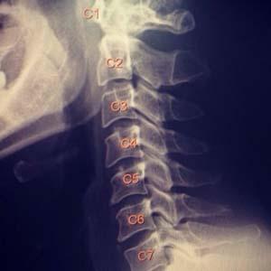 颈椎病x光片7