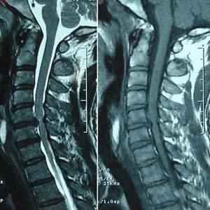 颈椎病x光片6