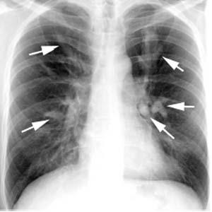 支气管扩张ct表现