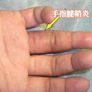 手指腱鞘炎图片