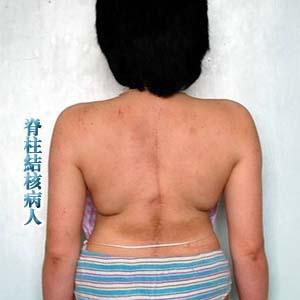 脊柱结核病人