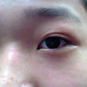 近视眼眼睛变形图片4