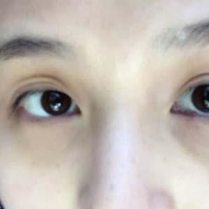 近视眼眼睛变形图片