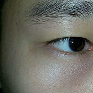 青光眼眼睛图片8