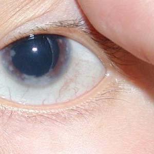 青光眼的早期症状图片