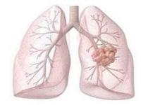 肺癌能治愈吗 早期诊断尤为重要
