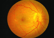 视网膜静脉阻塞患者要注意 时候护理很重要