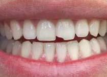 须知 牙齿修复的具体方法介绍