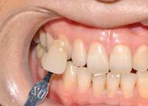 三种方法帮你进行牙齿修复