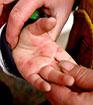 手足口病 仍然是5月的高发病