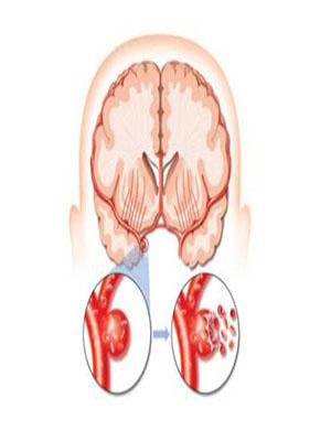 脑卒中防治需加强  推动诊疗规范化